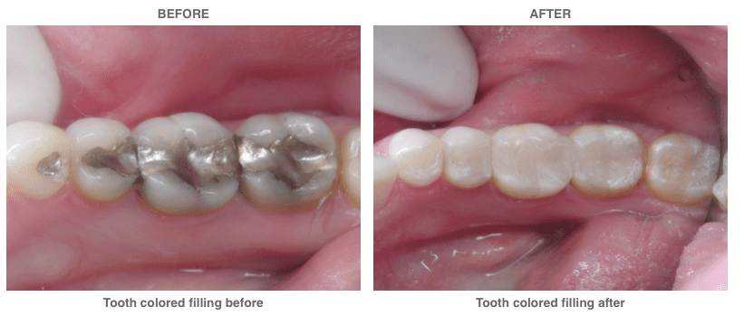 Before and after example of tooth colored filings