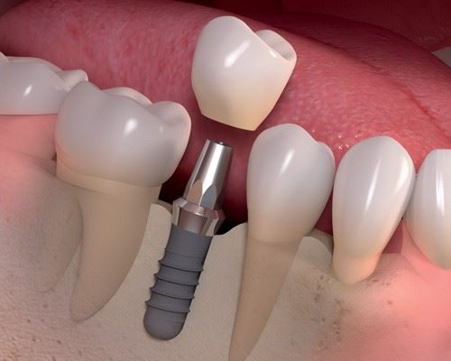 Rendering of a Dental Implant