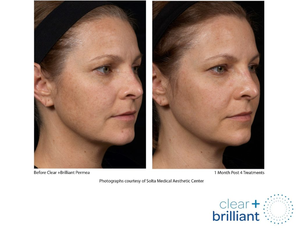 Before and after example of clear brilliant gentle laser